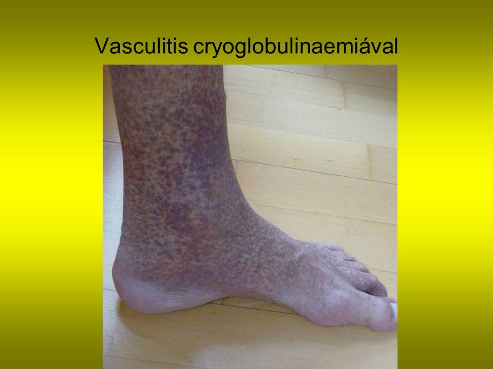 Vasculitis cryoglobulinaemiával