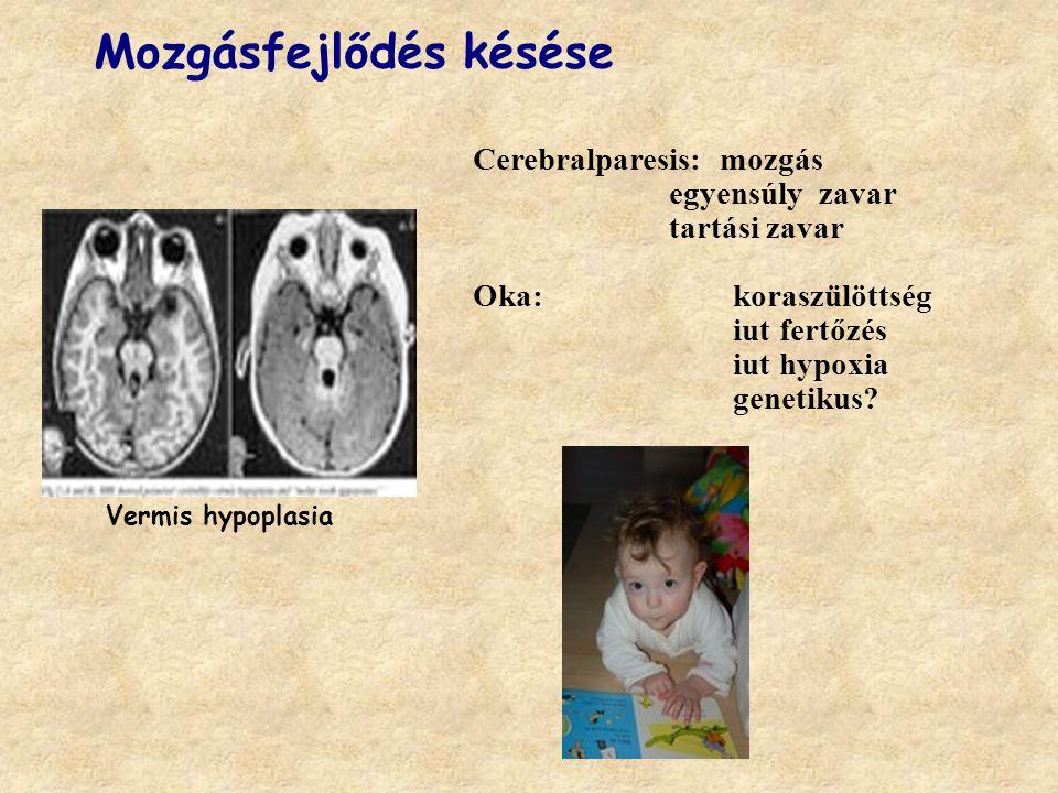 Vermis hypoplasia Mozgásfejlődés késése Cerebralparesis: mozgás egyensúly zavar tartási zavar Oka: koraszülöttség iut fertőzés iut hypoxia genetikus?