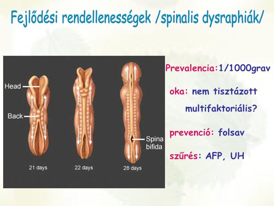 Prevalencia:1/1000grav oka: nem tisztázott multifaktoriális? prevenció: folsav szűrés: AFP, UH