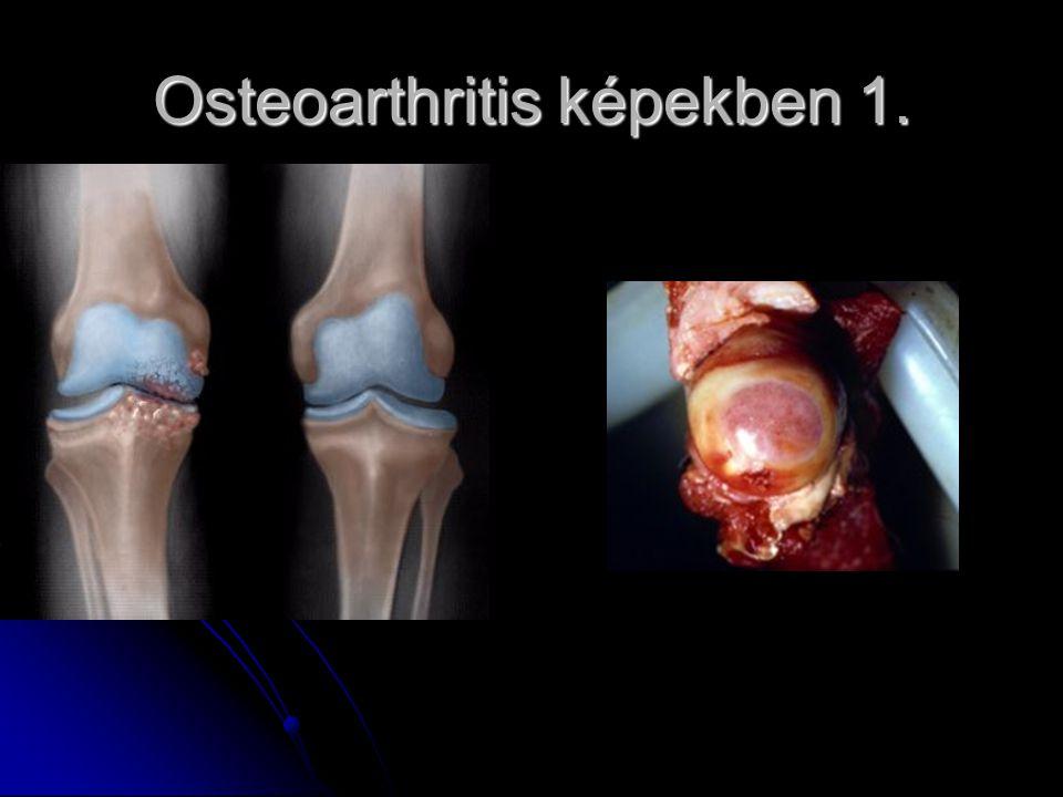 Osteoarthritis képekben 1.