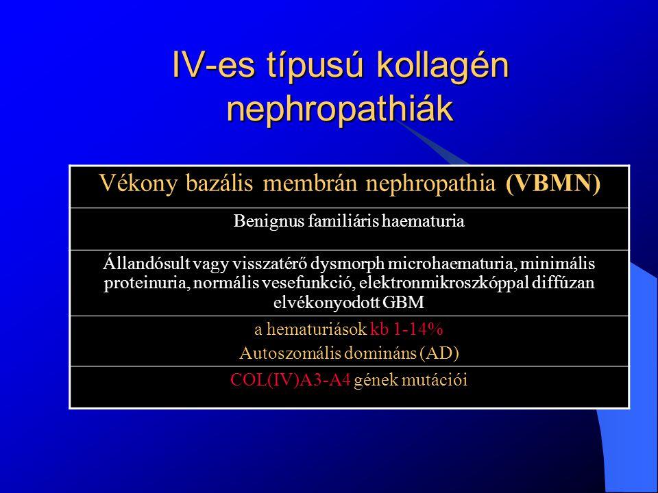 IV-es típusú kollagén nephropathiák Alport szindróma (AS) Haematuriával, proteinuriával járó progresszív, öröklődő nephropathia.