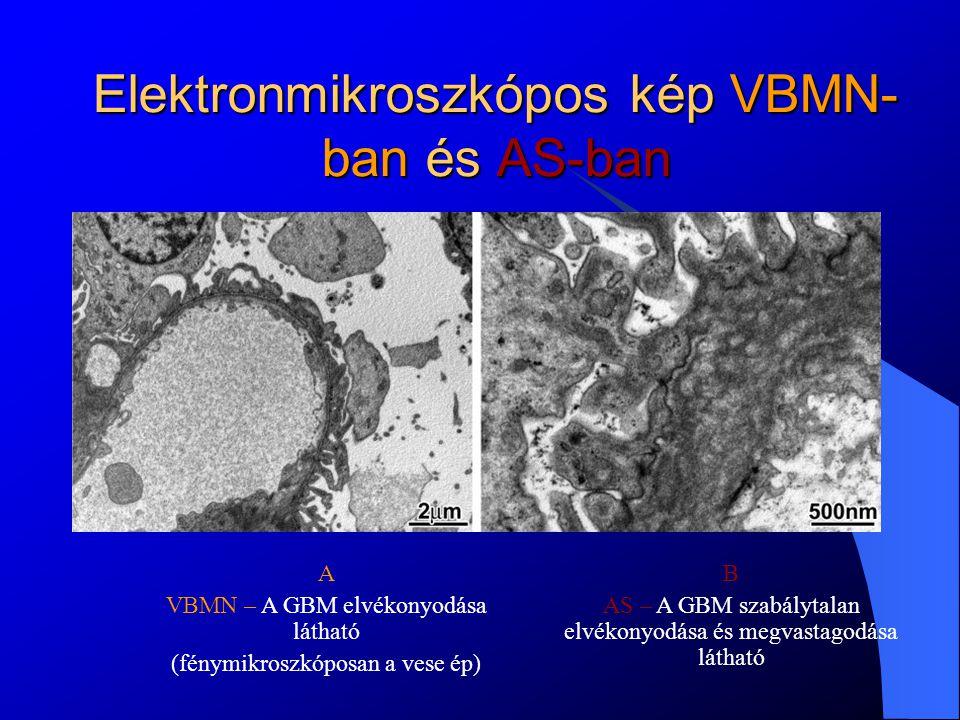 Célkitűzések 2-es és X- kromoszóma öröklődés menetének megállapítása (kapcsolt kromoszómához marker analízis) Az X kötött forma [COL(IV)A5] mutáció szűrése