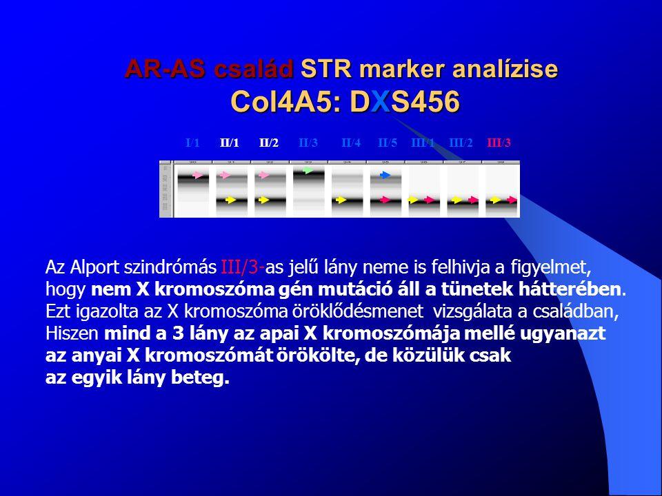 AR-AS család STR marker analízise Col4A3: D2S401 I/1 II/1 II/2 II/3 II/4 II/5 III/1 III/2III/3 Csak a 3/III.-as Alport szindrómás Lány örökölte a hematuriás apjától és Anyjától azt a 2-es kromoszóma Konbinációt, melyek mindegyike Génmutációt hordozott és ez neki Alport szindrómát okozott.