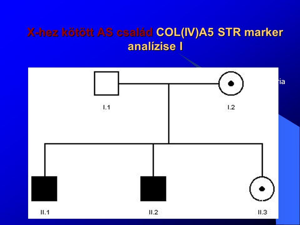 X-hez kötött AS család COL(IV)A5 STR marker analízise II D2S401 I/1 I/2 II/1 II/2 II/3DXS456 I/1 I/2 II/1 II/2 II/3 MarkerI/1I/2II/1II/2II/3thetaLOD CA11A5/A4A5/A3A4/A3A5/A3A5/A50.001-1.36 D2S401A6/A9A8/A10A9/A10A6/A10A6/A80.51.2 Col4A4A2/A1 A1/A1A2/A1A2/A20.5-2.75x10 -9 DXS456A5A3/A5A3A3A3A3A5/A3 0.0011.8 2B6 (X)A5A4/A7A4A4A4A4A5/A4 2B20 (X)B1B1/B2B1B1B1B1B1/B1 As nem 2-s krom-hoz köthető ASAs Anyai X-hez köthető Lod Score