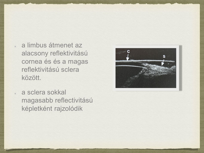 CORNEAL LIPID (MINERAL) DYSTROPHY a cornea disztrofia a szaruhártya progresszív elváltozása Gyakran szimmetrikus, nem átlátszó folt.