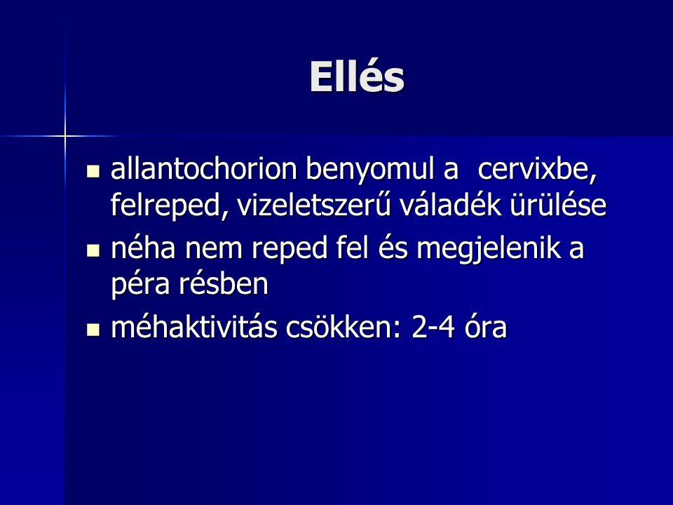 Ellés allantochorion benyomul a cervixbe, felreped, vizeletszerű váladék ürülése allantochorion benyomul a cervixbe, felreped, vizeletszerű váladék ürülése néha nem reped fel és megjelenik a péra résben néha nem reped fel és megjelenik a péra résben méhaktivitás csökken: 2-4 óra méhaktivitás csökken: 2-4 óra