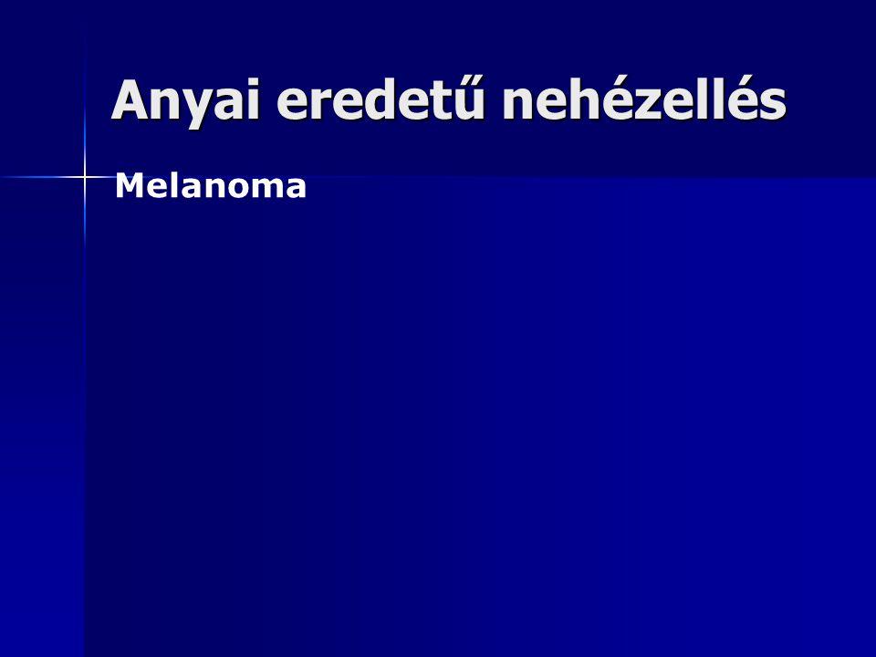 Anyai eredetű nehézellés Melanoma