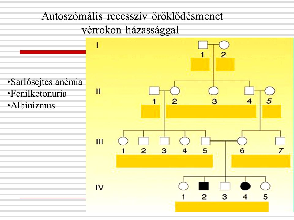 Autoszómális recesszív öröklődésmenet vérrokon házassággal Sarlósejtes anémia Fenilketonuria Albinizmus