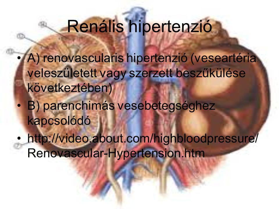 Renális hipertenzió A) renovascularis hipertenzió (veseartéria veleszületett vagy szerzett beszűkülése következtében) B) parenchimás vesebetegséghez k