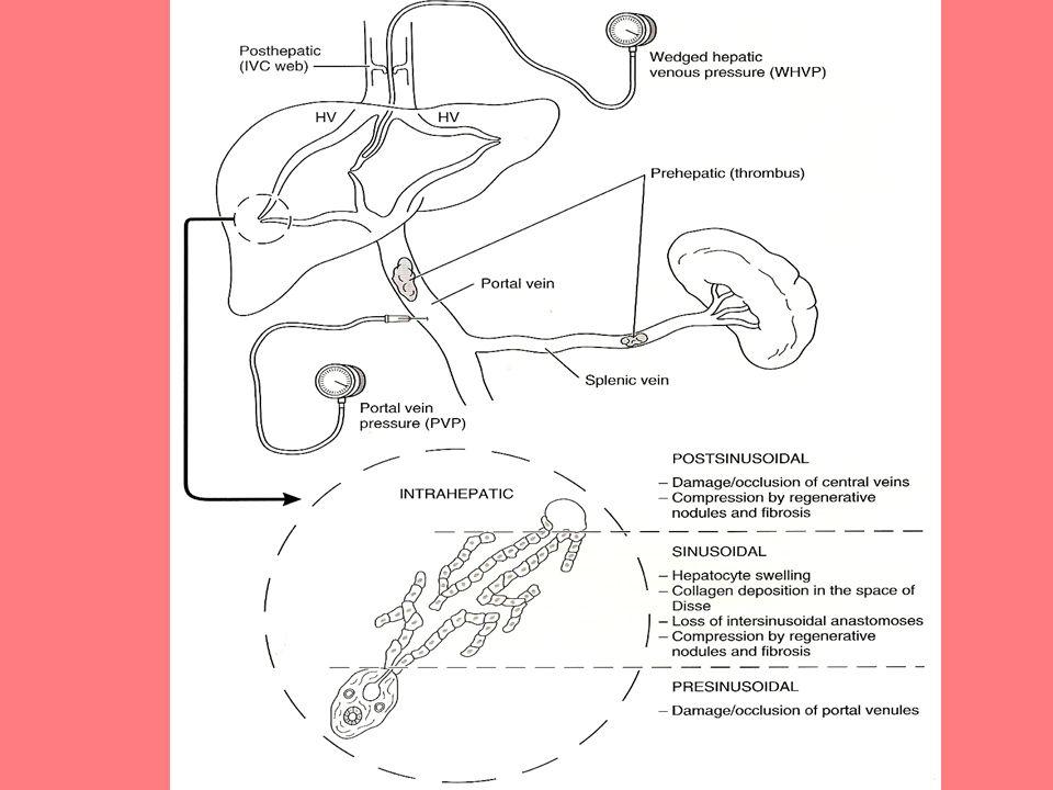 Sinusoidalis változások alkoholos cirrhosisban Hepatocyta megnagyobbodás zsír,fehérje deposit Disse térben collagen depositio Sinusoidalis anastomosisok eltünnek Regenerativ göbök és fibrosis compressioja