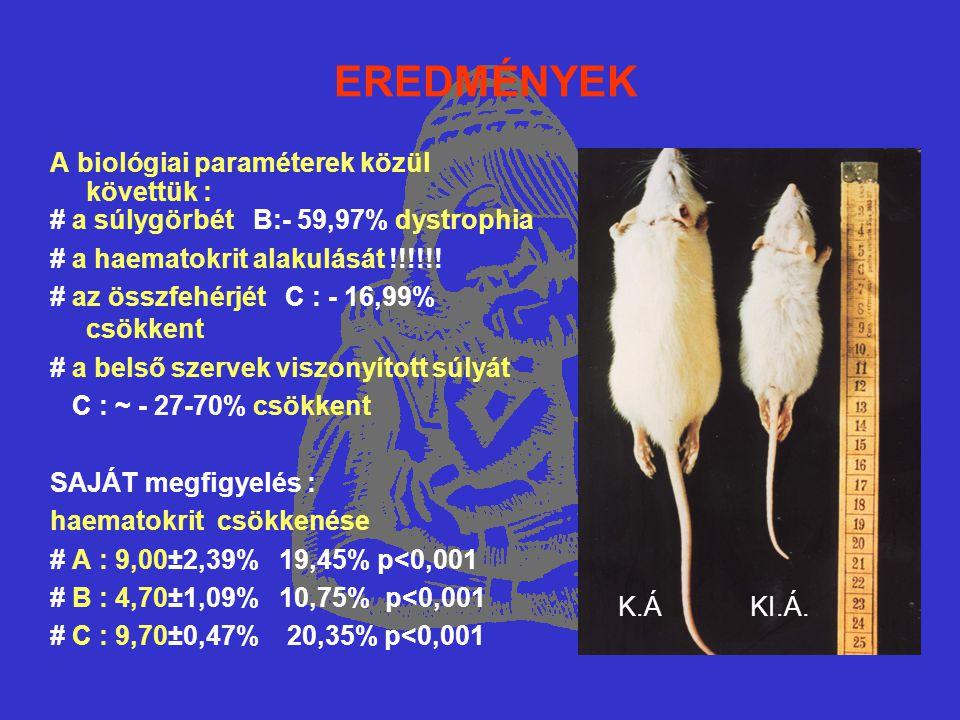 EREDMÉNYEK A biológiai paraméterek közül követtük : # a súlygörbét B:- 59,97% dystrophia # a haematokrit alakulását !!!!!! # az összfehérjét C : - 16,
