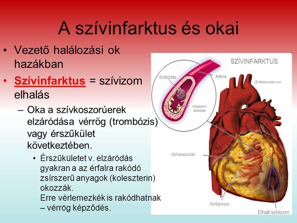 A szívinfarktus és okai Vezető halálozási ok hazákban SzívinfarktusSzívinfarktus = szívizom elhalás –Oka a szívkoszorúerek elzáródása vérrög (trombózis) vagy érszűkület következtében.
