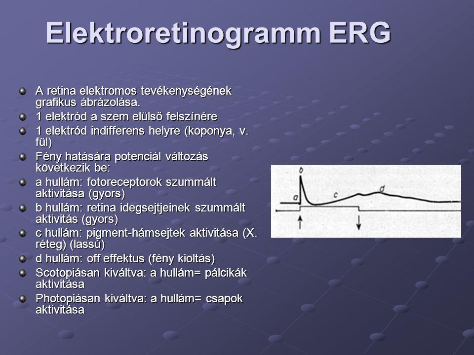 Elektroretinogramm ERG A retina elektromos tevékenységének grafikus ábrázolása. 1 elektród a szem elülső felszínére 1 elektród indifferens helyre (kop
