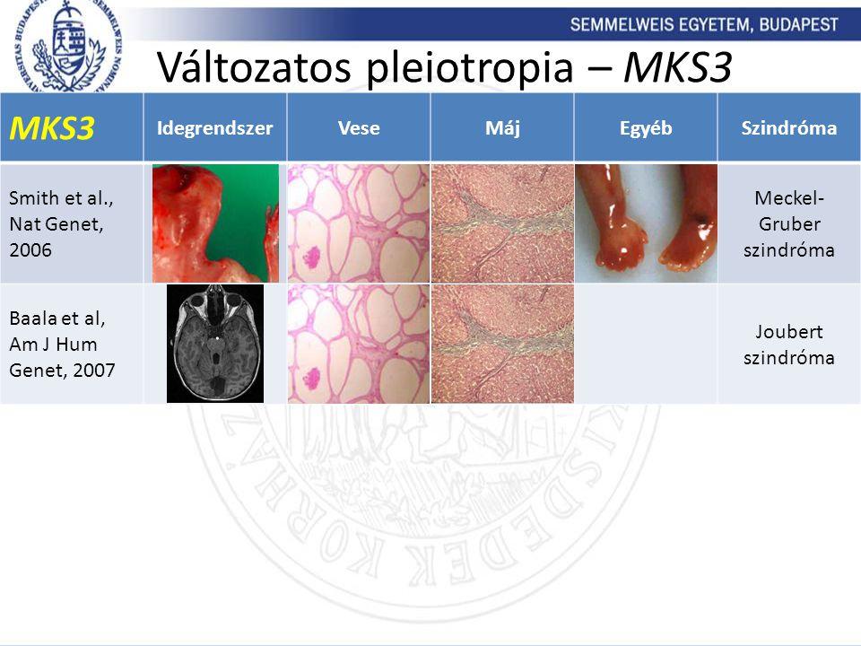 MKS3 IdegrendszerVeseMájEgyébSzindróma Smith et al., Nat Genet, 2006 Meckel- Gruber szindróma Baala et al, Am J Hum Genet, 2007 Joubert szindróma Vált