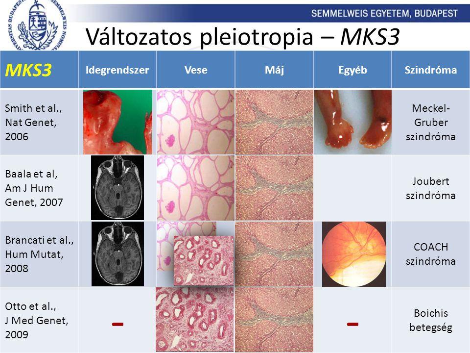 MKS3 IdegrendszerVeseMájEgyébSzindróma Smith et al., Nat Genet, 2006 Meckel- Gruber szindróma Baala et al, Am J Hum Genet, 2007 Joubert szindróma Bran
