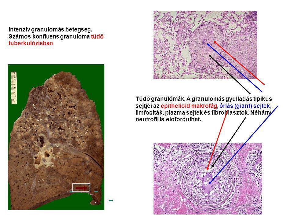 Intenzív granulomás betegség. Számos konfluens granuloma tüdő tuberkulózisban Tüdő granulómák.