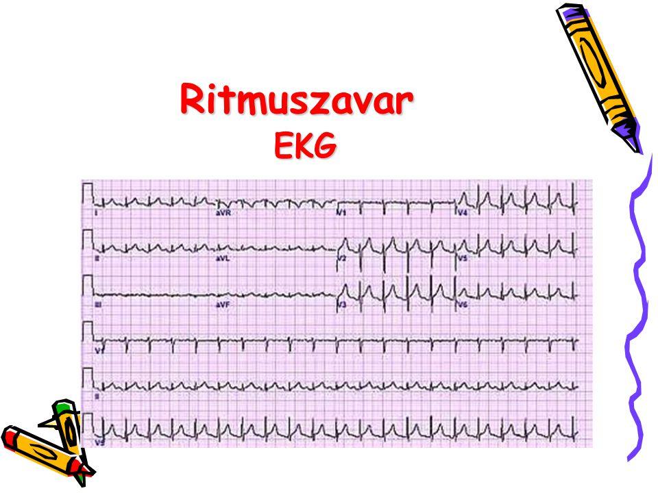 Ritmuszavar EKG