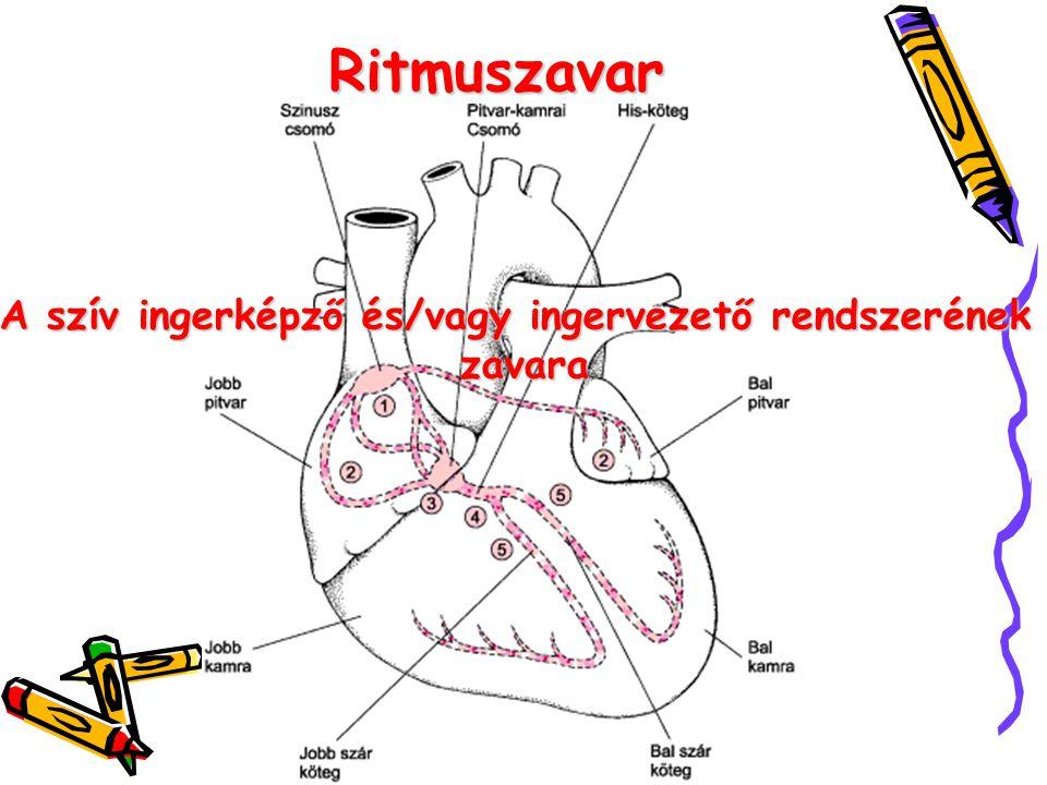 Ritmuszavar A szív ingerképző és/vagy ingervezető rendszerének zavara