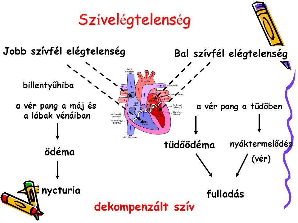 Sz í vel é gtelens é g Bal szívfél elégtelenség Jobb szívfél elégtelenség billentyűhiba a vér pang a máj és a lábak vénáiban ödéma nycturia a vér pang a tüdőben tüdőödéma fulladás nyáktermelődés (vér) dekompenzált szív