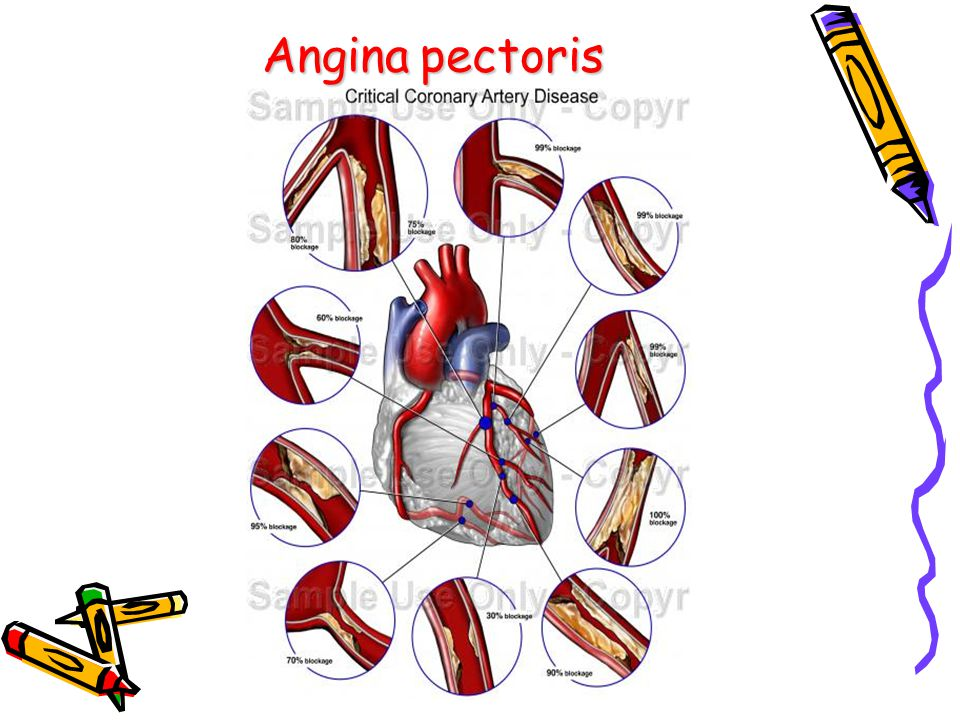 Anginapectoris Angina pectoris