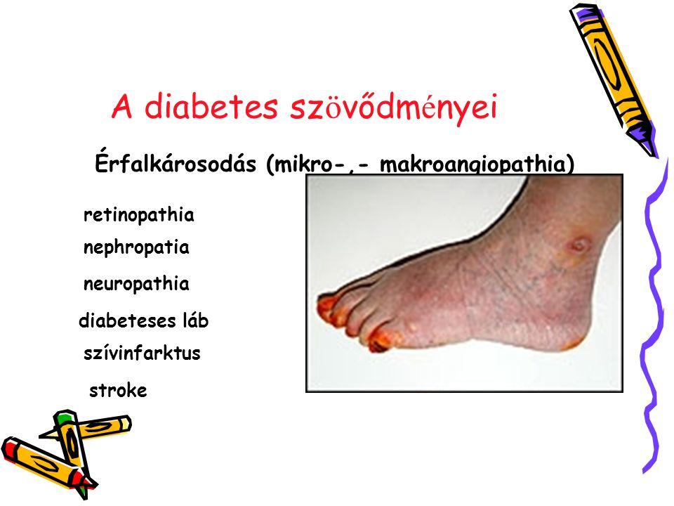 A diabetes sz ö vődm é nyei Érfalkárosodás (mikro-,- makroangiopathia) retinopathia nephropatia neuropathia diabeteses láb szívinfarktus stroke
