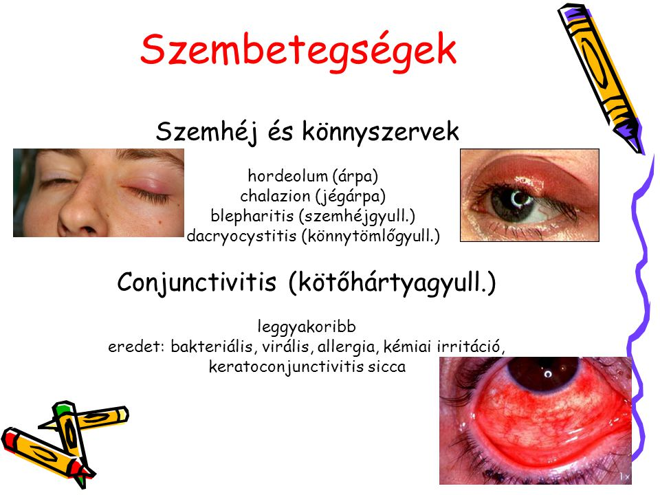 Szembetegségek Szemhéj és könnyszervek hordeolum (árpa) chalazion (jégárpa) blepharitis (szemhéjgyull.) dacryocystitis (könnytömlőgyull.) Conjunctivit