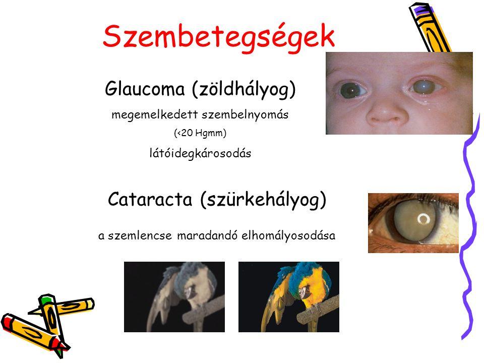 Szembetegségek Glaucoma (zöldhályog) megemelkedett szembelnyomás (<20 Hgmm) látóidegkárosodás Cataracta (szürkehályog) a szemlencse maradandó elhomály