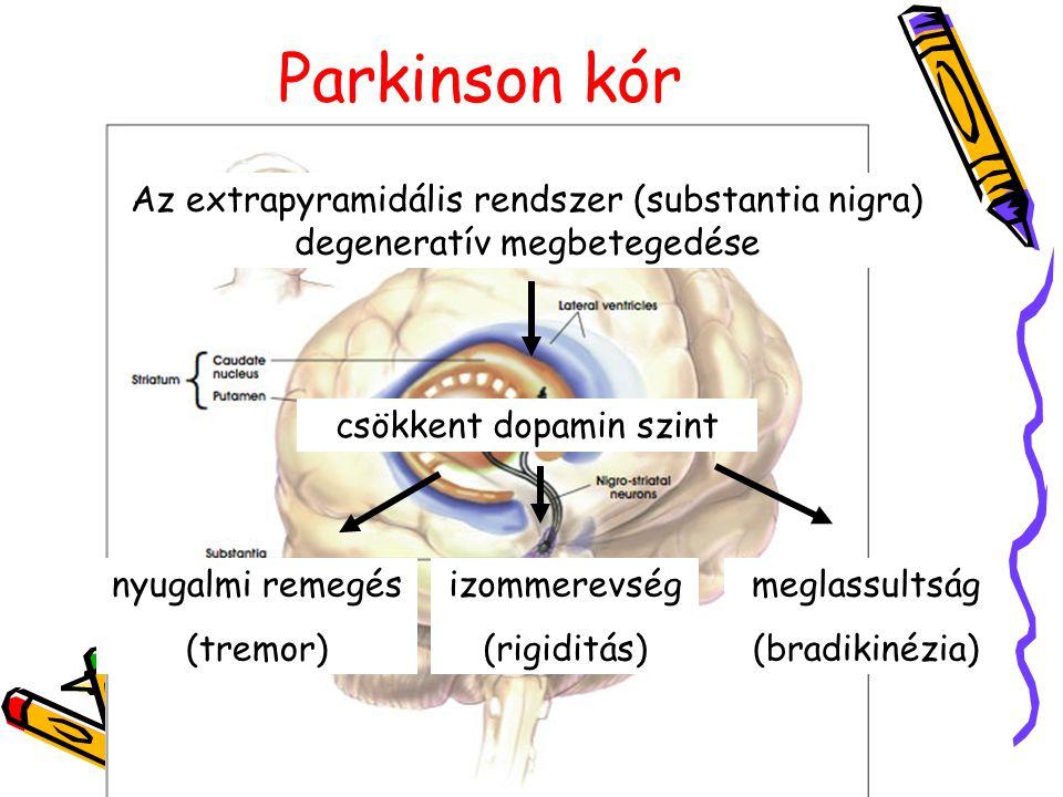 Parkinson kór Az extrapyramidális rendszer (substantia nigra) degeneratív megbetegedése csökkent dopamin szint nyugalmi remegés (tremor) izommerevség (rigiditás) meglassultság (bradikinézia)