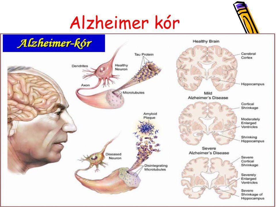 Huntington betegség Tünetei: 30-50 éves korban - egyensúlyérzék elvesztése - értelmi képesség hanyatlása - végtagrángás - depresszió - hallucináció, érzékcsalódások