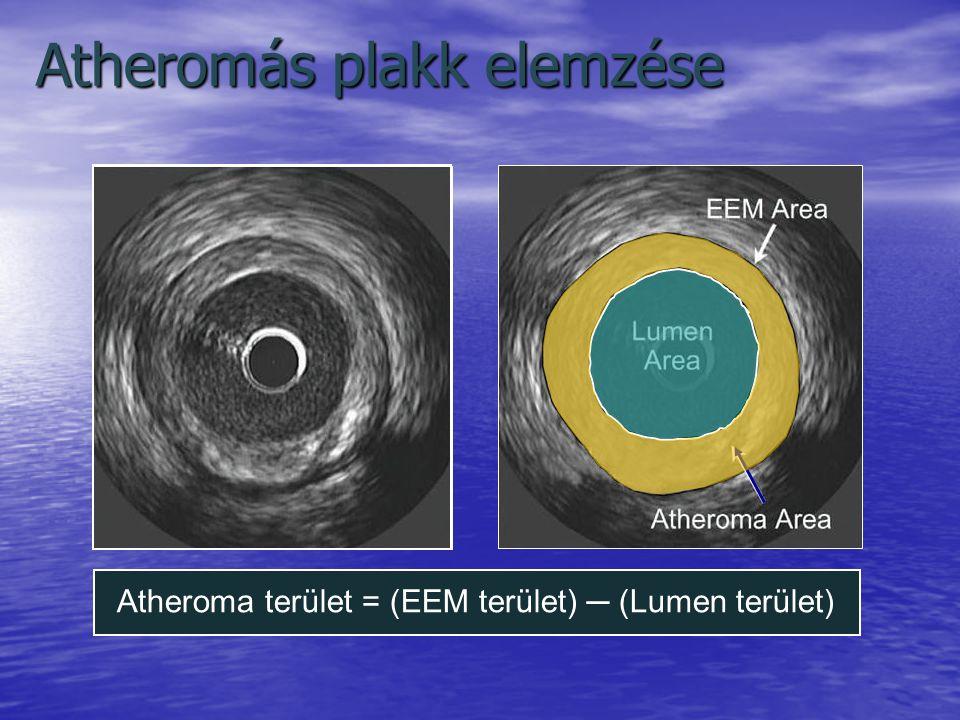 Atheromás plakk elemzése Atheroma terület = (EEM terület) ─ (Lumen terület)