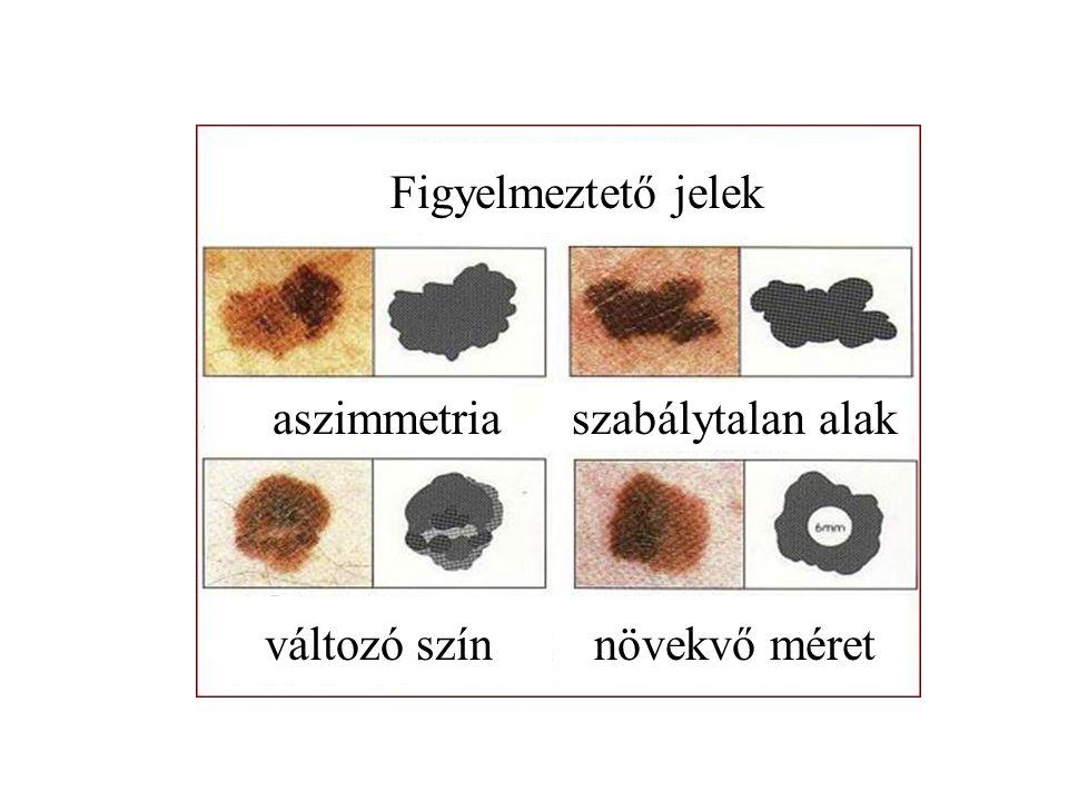 Figyelmeztető jelek aszimmetriaszabálytalan alak változó színnövekvő méret