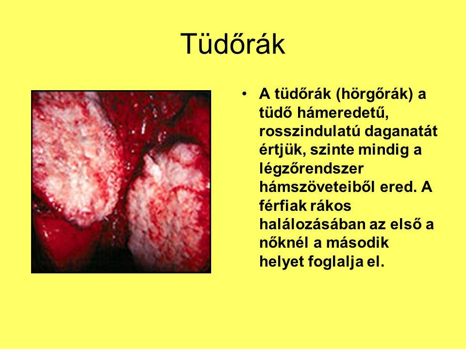 Tüdőrák A tüdőrák (hörgőrák) a tüdő hámeredetű, rosszindulatú daganatát értjük, szinte mindig a légzőrendszer hámszöveteiből ered. A férfiak rákos hal