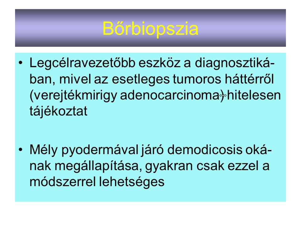 Bőrbiopszia Legcélravezetőbb eszköz a diagnosztiká- ban, mivel az esetleges tumoros háttérről (verejtékmirigy adenocarcinoma) hitelesen tájékoztat Mél