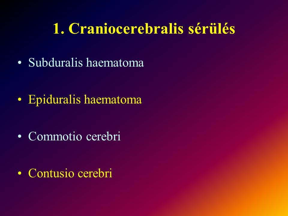 1. Craniocerebralis sérülés Subduralis haematoma Epiduralis haematoma Commotio cerebri Contusio cerebri