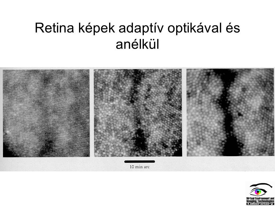 Retina képek adaptív optikával és anélkül