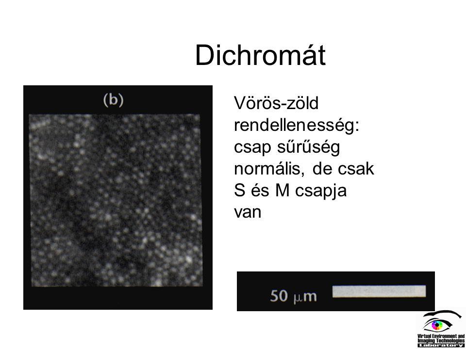 Dichromát Vörös-zöld rendellenesség: csap sűrűség normális, de csak S és M csapja van