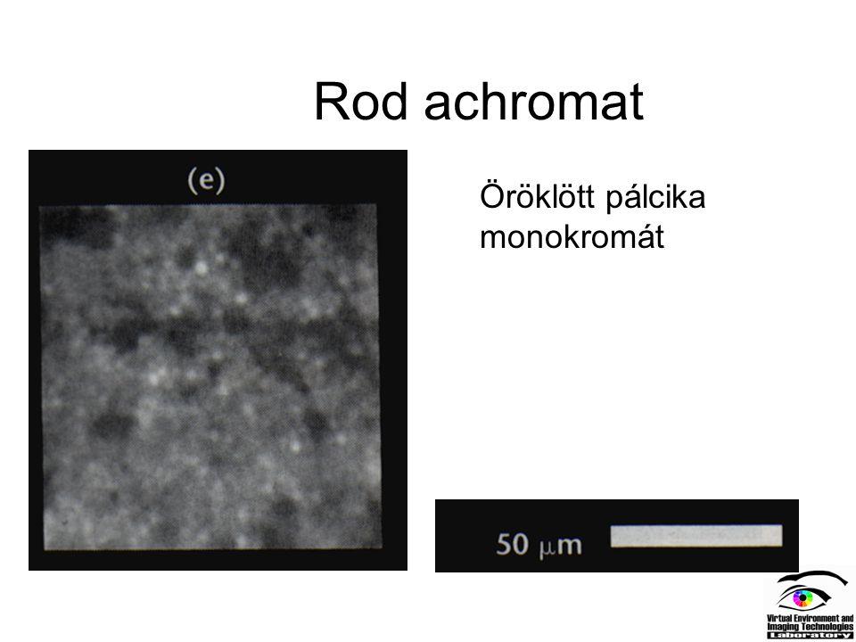 Rod achromat Öröklött pálcika monokromát