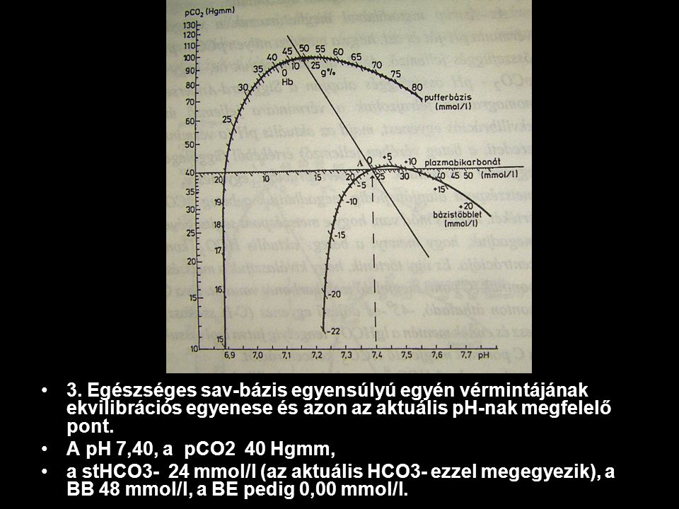 3. Egészséges sav-bázis egyensúlyú egyén vérmintájának ekvilibrációs egyenese és azon az aktuális pH-nak megfelelő pont. A pH 7,40, a pCO2 40 Hgmm, a