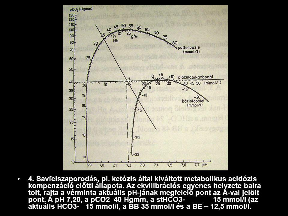 4. Savfelszaporodás, pl. ketózis által kiváltott metabolikus acidózis kompenzáció előtti állapota. Az ekvilibrációs egyenes helyzete balra tolt, rajta