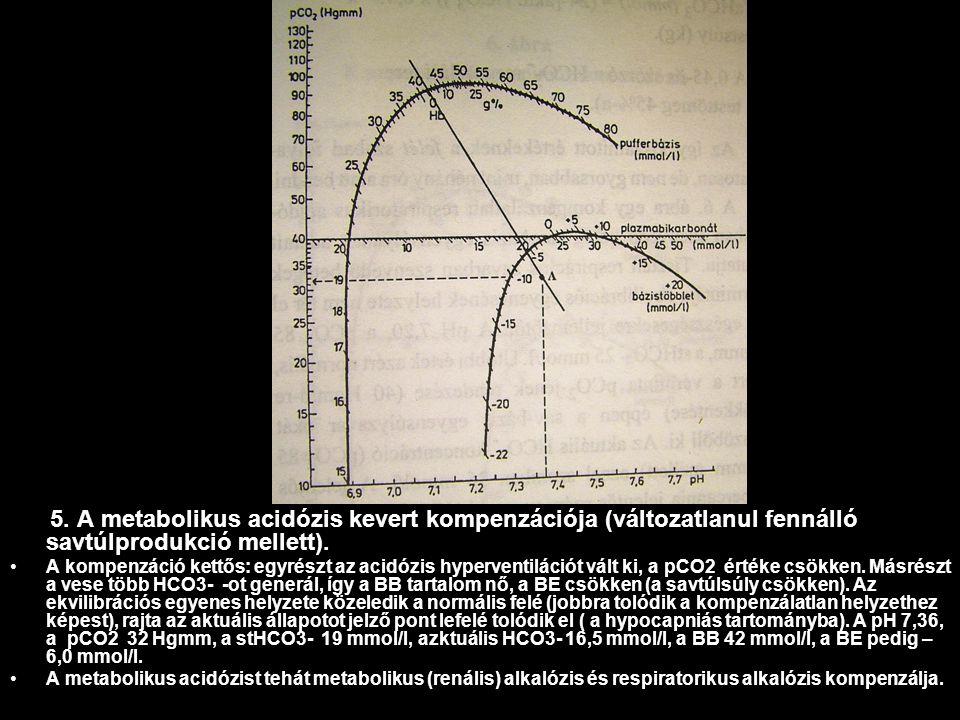 5. A metabolikus acidózis kevert kompenzációja (változatlanul fennálló savtúlprodukció mellett). A kompenzáció kettős: egyrészt az acidózis hyperventi