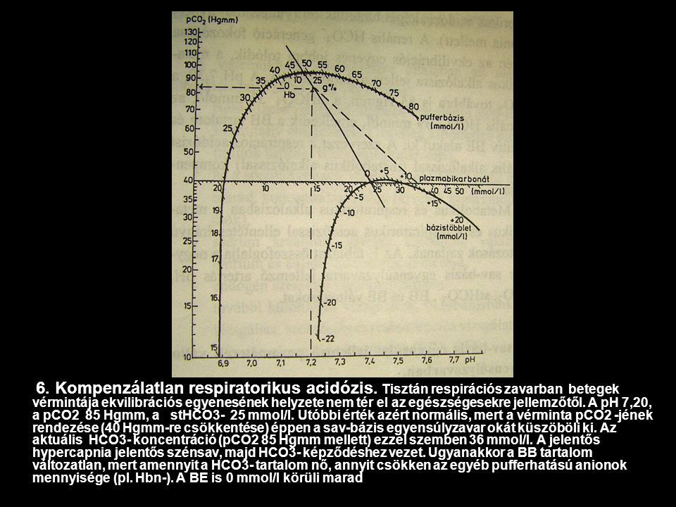 6. Kompenzálatlan respiratorikus acidózis. Tisztán respirációs zavarban betegek vérmintája ekvilibrációs egyenesének helyzete nem tér el az egészséges