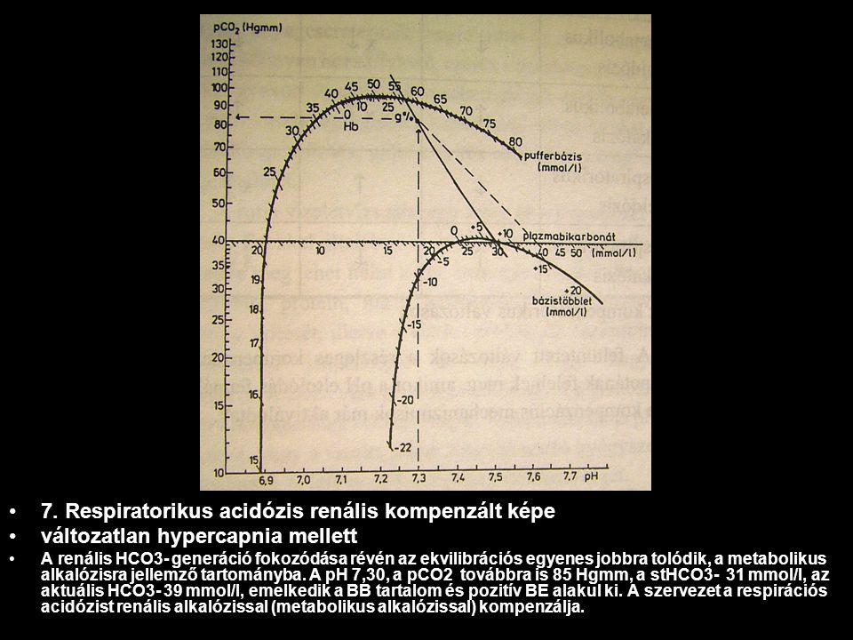 7. Respiratorikus acidózis renális kompenzált képe változatlan hypercapnia mellett A renális HCO3- generáció fokozódása révén az ekvilibrációs egyenes