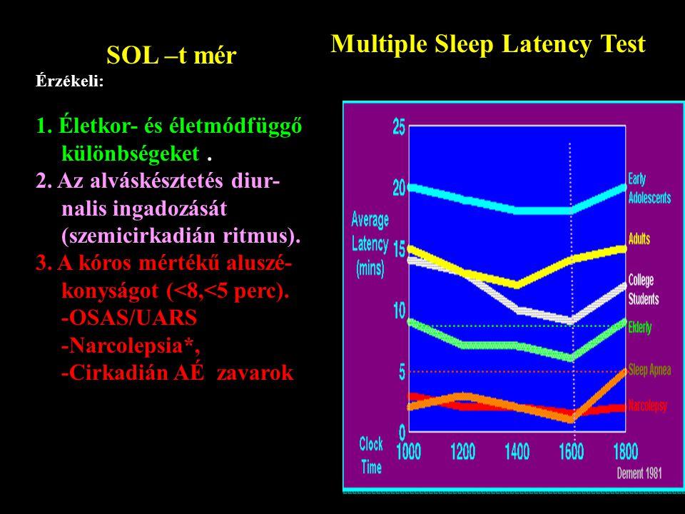 Multiple Sleep Latency Test SOL –t mér Érzékeli: 1.