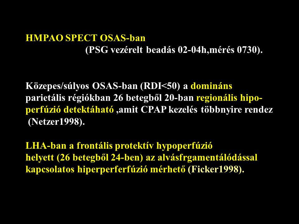 HMPAO SPECT OSAS-ban (PSG vezérelt beadás 02-04h,mérés 0730).