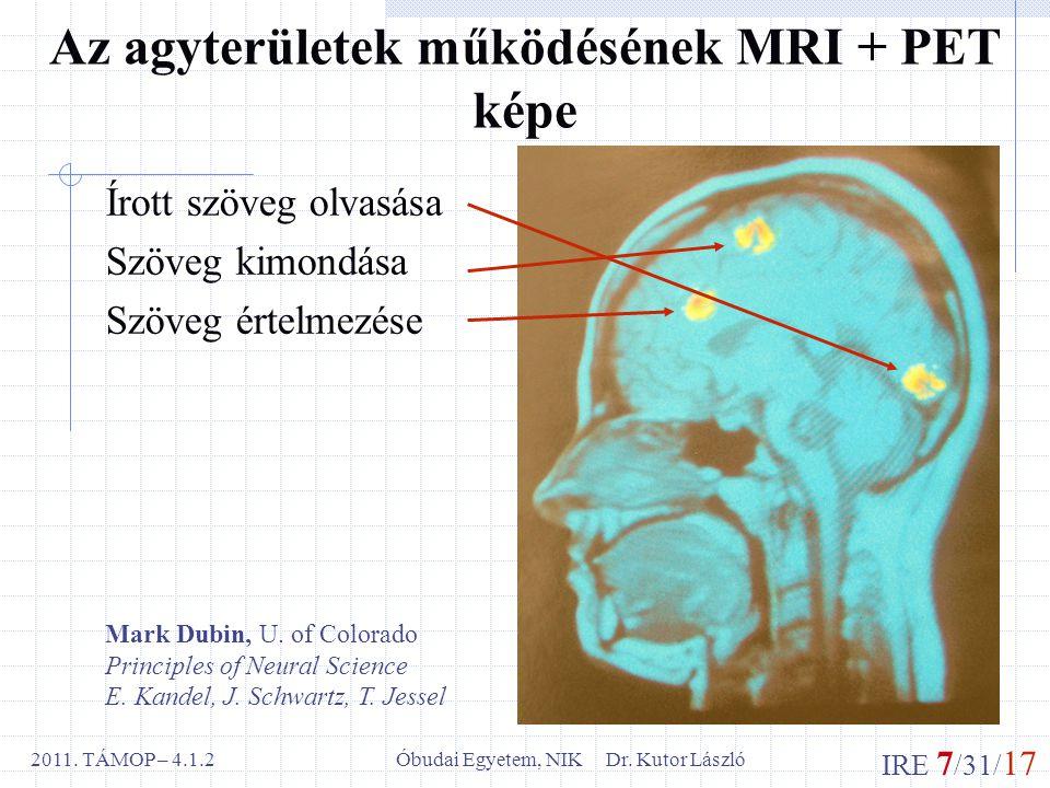 IRE 7 /31/ 17 Óbudai Egyetem, NIK Dr. Kutor László2011.