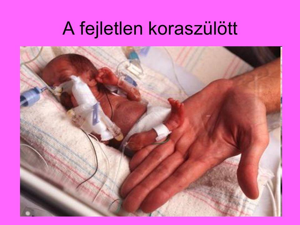 Óriásbaba és a normál újszülött