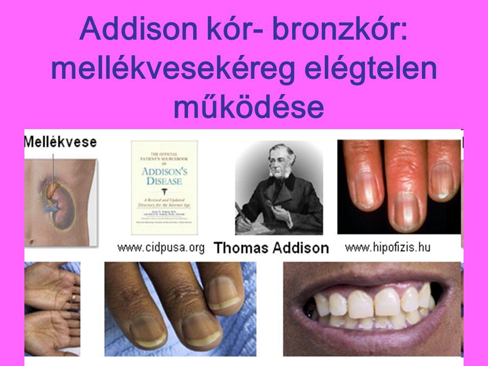 Addison kór- bronzkór: mellékvesekéreg elégtelen működése