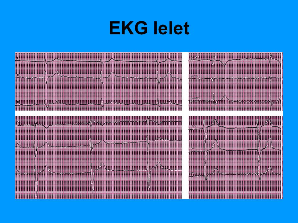 EKG lelet