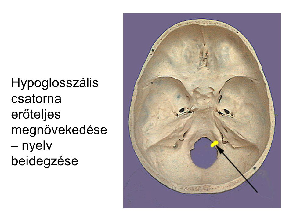 Hypoglosszális csatorna erőteljes megnövekedése – nyelv beidegzése