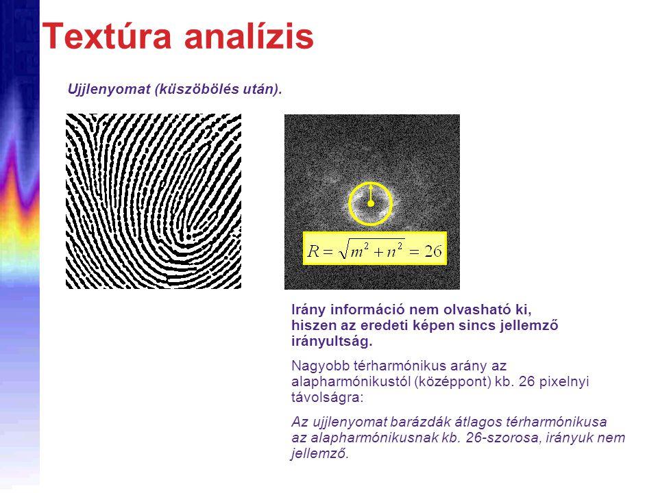 Textúra analízis Ujjlenyomat (küszöbölés után).